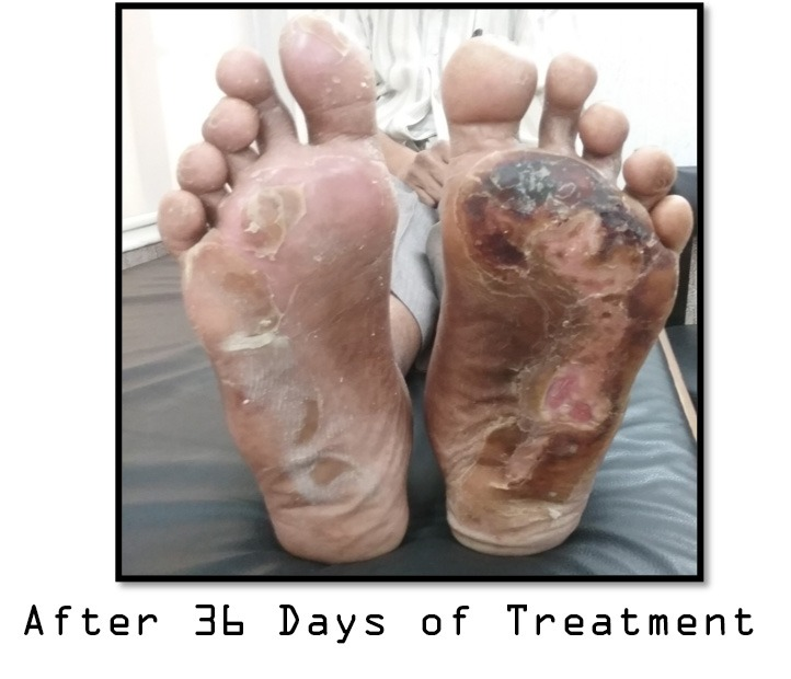 Thermal Burns with Peripheral Neuropathy After Treatment
