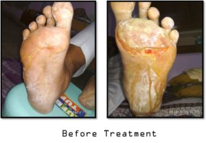 Thermal Burns with Peripheral Neuropathy Before Treatment